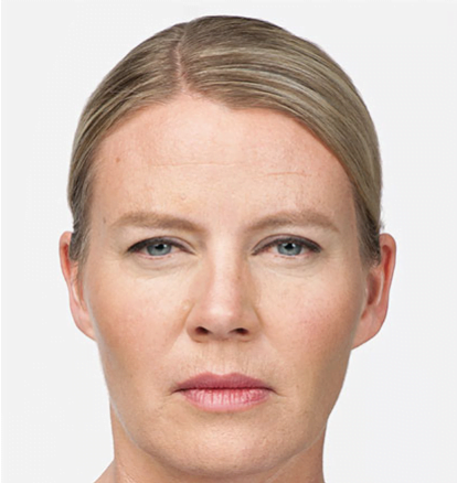 Botox - After 7 days