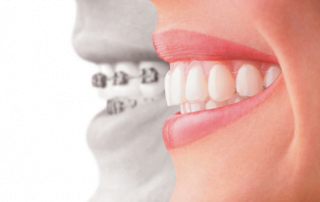 Invisalign Milford OH dentist