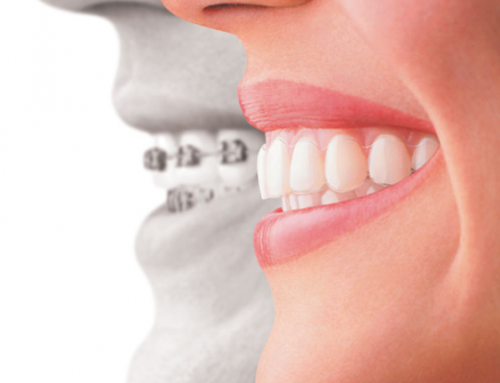 Why Your Teeth Need Braces – Invisalign